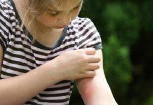 Dang humması (Dengue fever) hastalığı nedir?