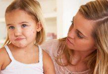Avrupa'da kızamık hastalığında korkutan yükseliş